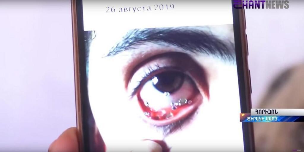 Mladá Arménka plače namiesto sĺz kryštály. Lekári jej nevedia pomôcť.